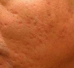 Scars Acne After Treatment