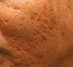 Scars Acne Before Treatment