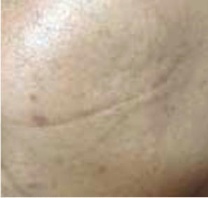 Scar After Treatment