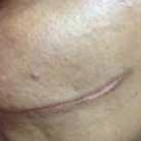 Scar Before Treatment